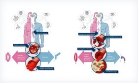 Sanofi | Diabetes und Sexualität
